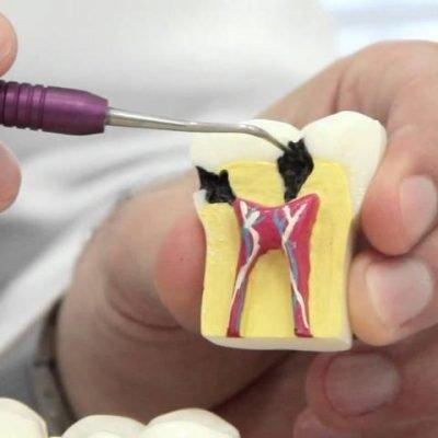 especializacao-em-endodontia